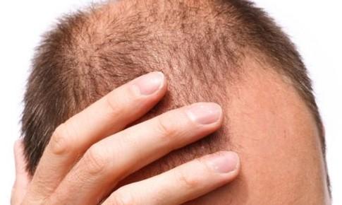 Top 10 câu hỏi thường gặp về chăm sóc tóc và ngăn ngừa rụng tóc