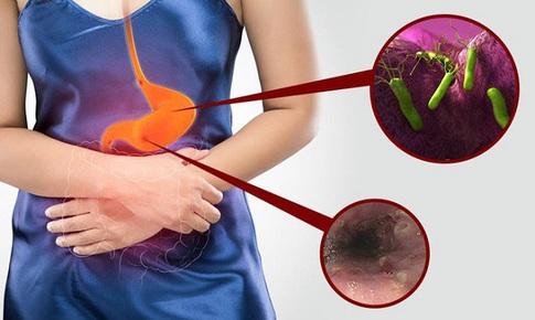 Những nguy hiểm từ bệnh viêm loét dạ dày - tá tràng