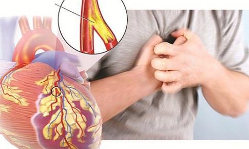 Giải pháp hữu hiệu giúp bạn phòng ngừa tức ngực, khó thở