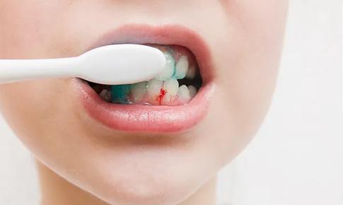 Chảy máu chân răng khi đánh răng – không thể chủ quan