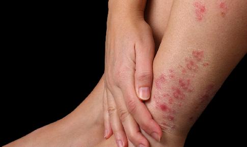 Bật mí nguyên nhân và cách xử lý bệnh vảy nến ở chân