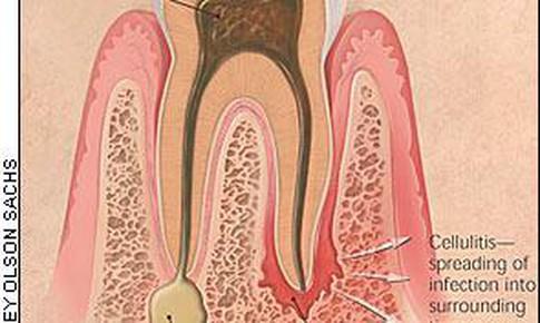 Viêm mô tế bào lan tỏa vùng hàm mặt –  Biến chứng bệnh lý răng miệng