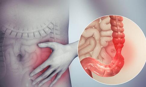 Viêm đại tràng co thắt và cách phòng bệnh tái phát hiệu quả