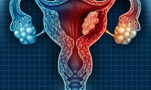 U nang buồng trứng: dấu hiệu và cách khắc phục