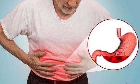 Đau dạ dày là gì? Dấu hiệu, nguyên nhân và các biến chứng?