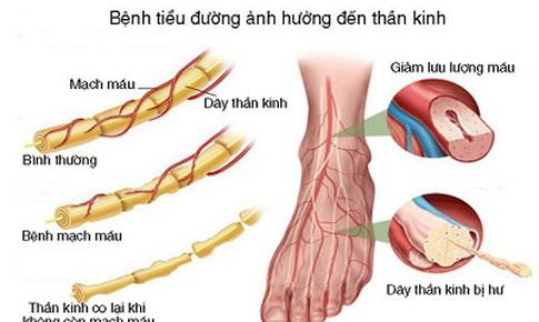 Thuốc trị bệnh thần kinh ngoại biên bàn chân tiểu đường