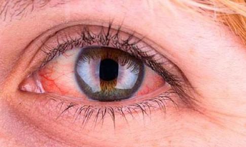 Mắt đỏ ngầu: 5 mẹo để giảm kích ứng