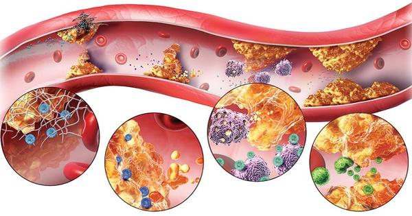 Nguy cơ mắc bệnh tim mạch do rối loạn lipid máu